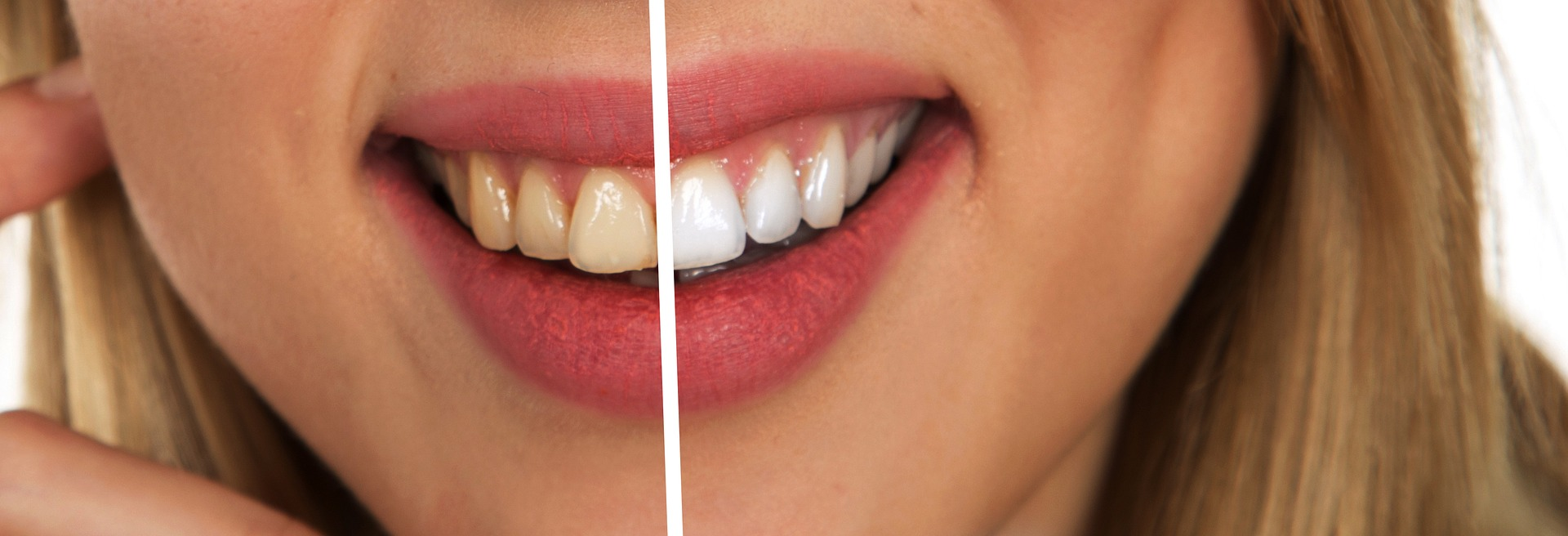 teeth whitening compared